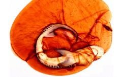 Tiger shark embryo in egg sac